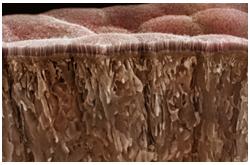 Seccion del Intestino delgado, mostrando la mucosa