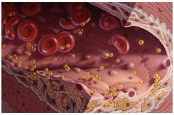 Ilustración médica de Hipercolesterolemia