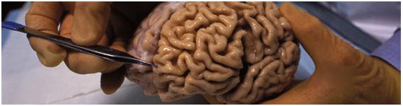 Cerebros utilzados para estudiar la enfermedad de Alzheimer