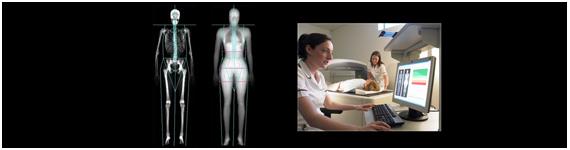 Absorciometría de rayos-X de energía dual
