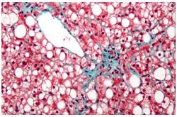 Enfermedad del hígado graso no alcohólico (NAFLD), donde se observa fibrosis (tinta azulada)