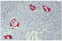 Microfotografía Isletas de Langerhans en el páncreas (Magnificación X25)