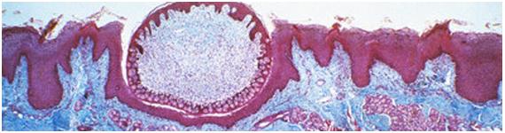 Micrografia de Papila circunvalada, confinadas a la parte posterior de la lengua
