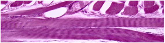 Músculo esquelético de la lengua