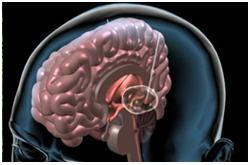 Desórden neurodegenerativo, Enfermedad de Parkinson