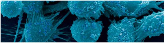 Microfotografia de células de la prostata cancerígenas