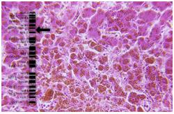 Hígado humano con hemocromatosis causado por mutaciones en el gen HFE