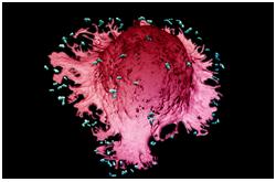 Macrófago envolviendo bacterias, como parte de la respuesta del sistema inmune a una infección