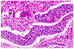 Tejido adiposo cutáneo con caquexia severa, se observa la involución de los adipocitos, los cuales aparecen como bandas alongadas