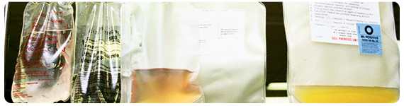 Medicamentos experimentales para tratar la caquexia por cancer (ALD518, GTx-024, VT-122)