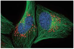 Micrografìa fluorescente: Detección de autofagia en células vivas