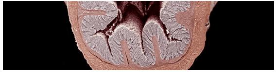 Sección transversal del colon