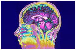 El ácido retinoico puede ser producido en los cuerpos celulares funcionales de una región cerebral para el transporte axonal a otras regiones remotas en donde pueden dirigir la neuromodulación