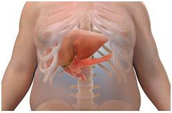 La incidencia de obesidad está asociada con la enfermedad del hígado graso no alcohólico (NAFLD)