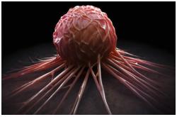 Existe evidencia limitada para sugerir que la acidosis dietaria por si sola es suficiente para incrementar el riesgo de cáncer